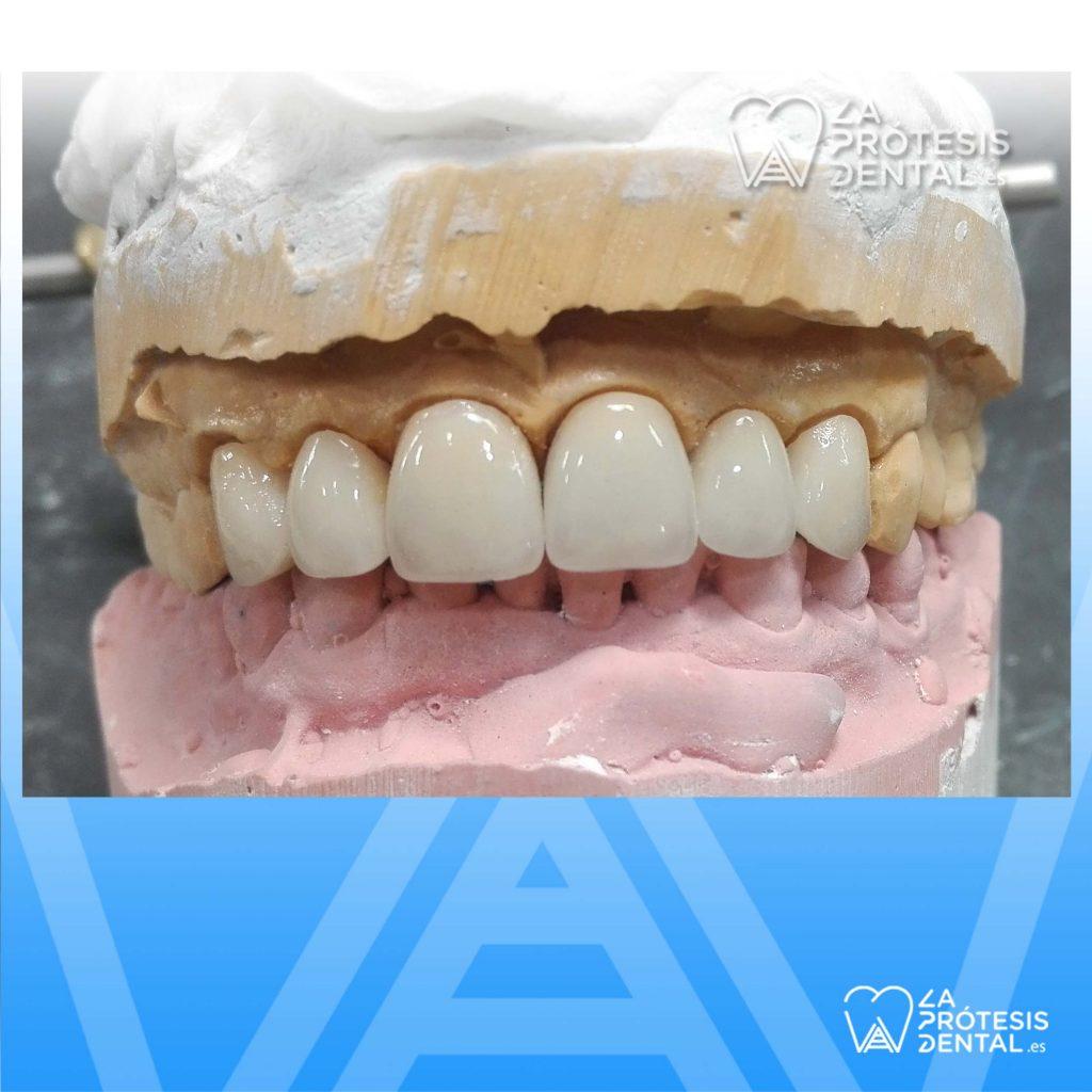 la-protesis-dental-1202