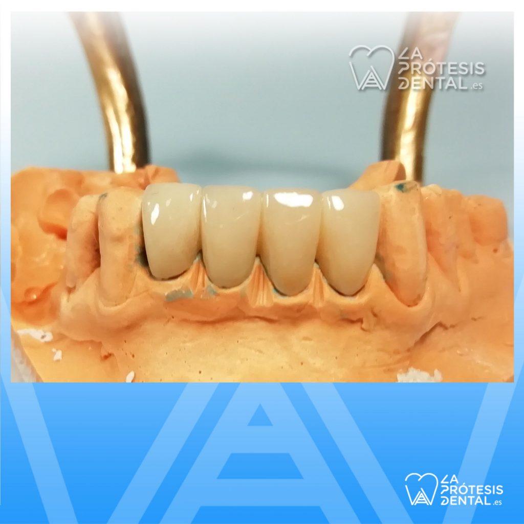 la-protesis-dental-1204