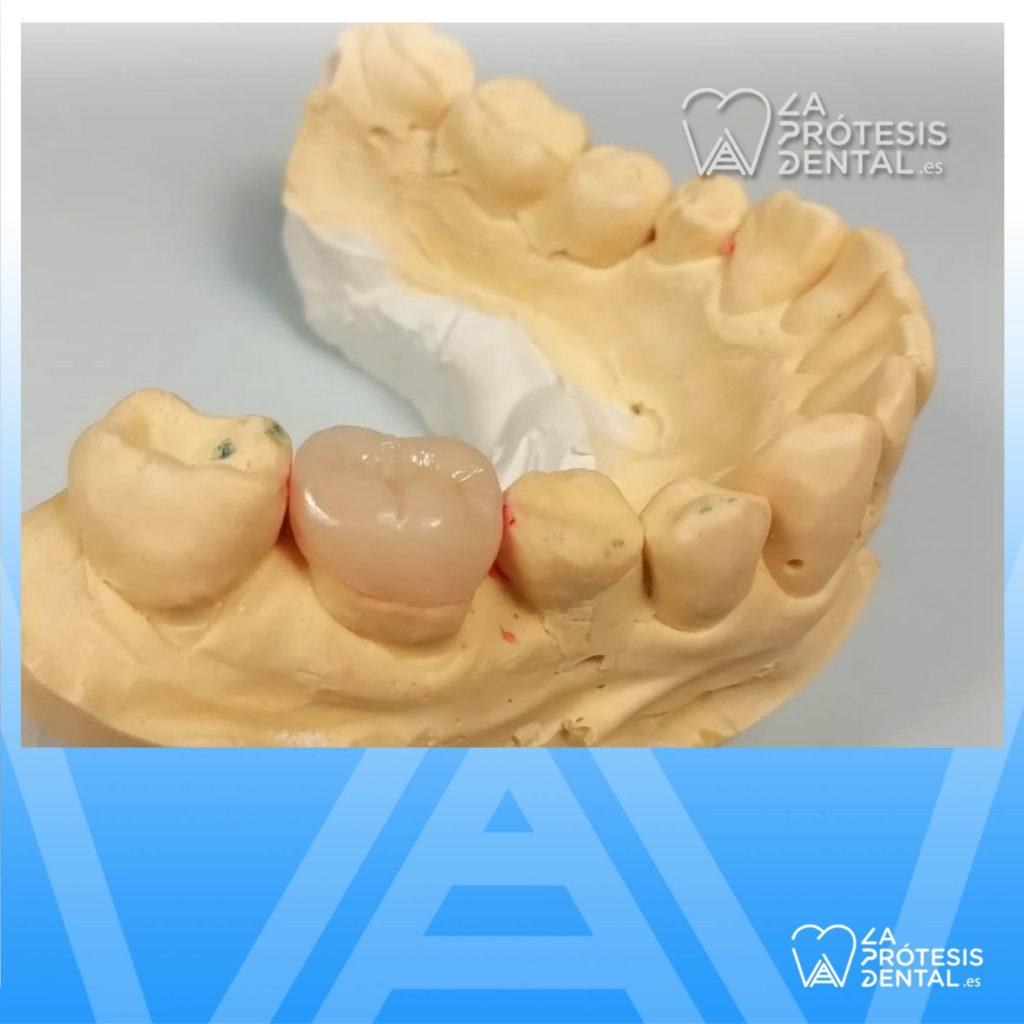 la-protesis-dental-1205