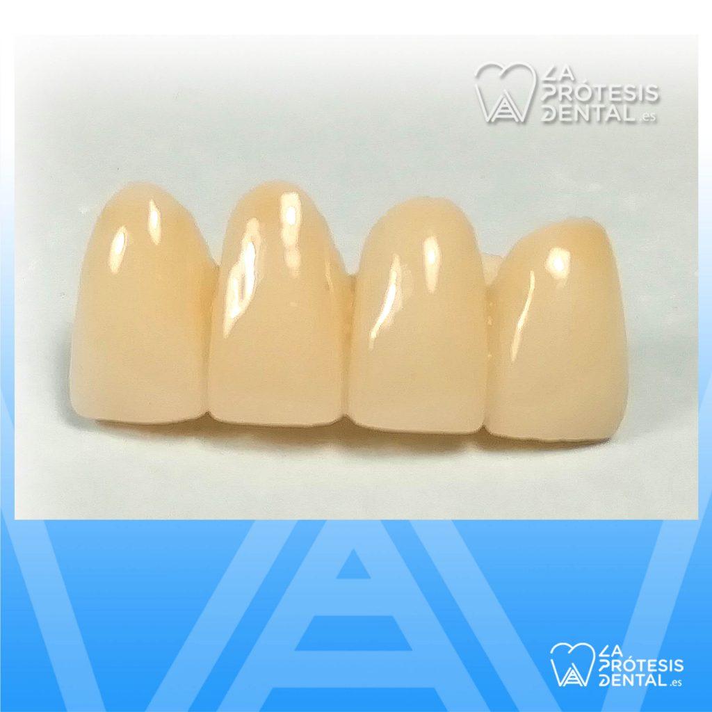 la-protesis-dental-1206
