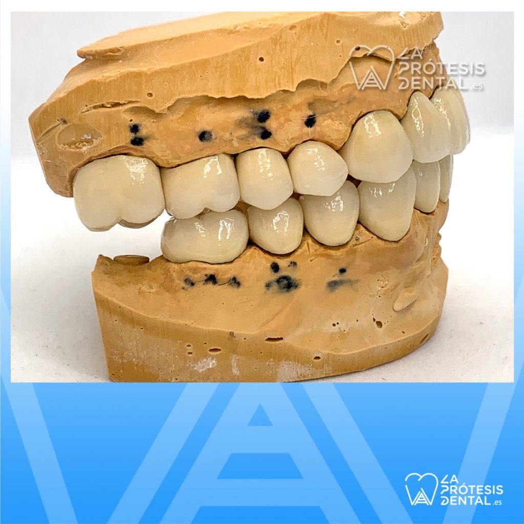 la-protesis-dental-0858
