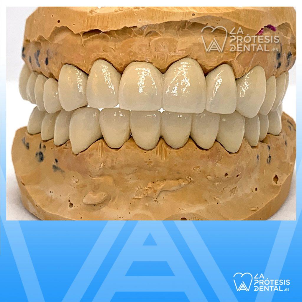 la-protesis-dental-0901