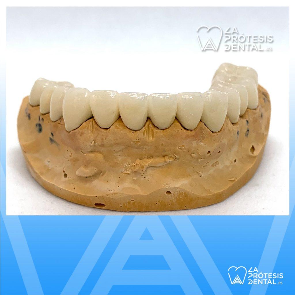 la-protesis-dental-0904