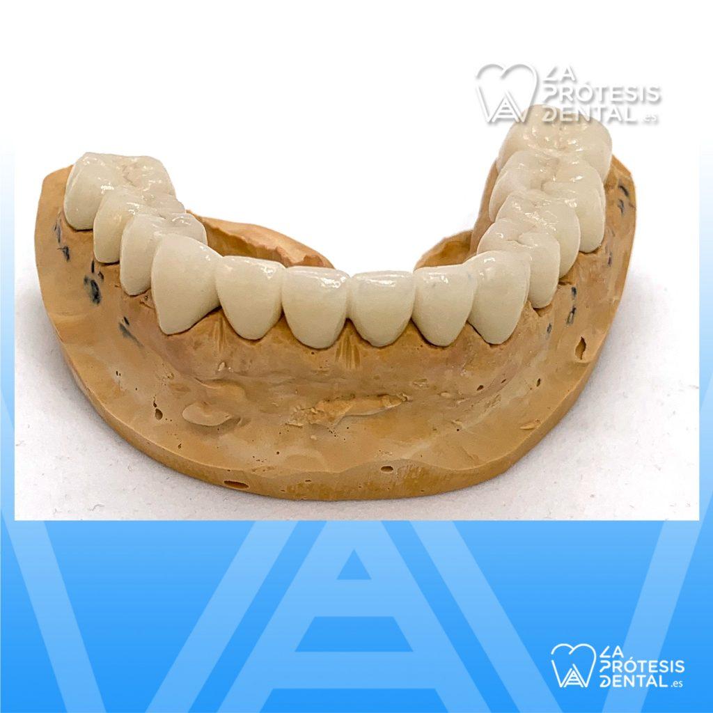 la-protesis-dental-0905