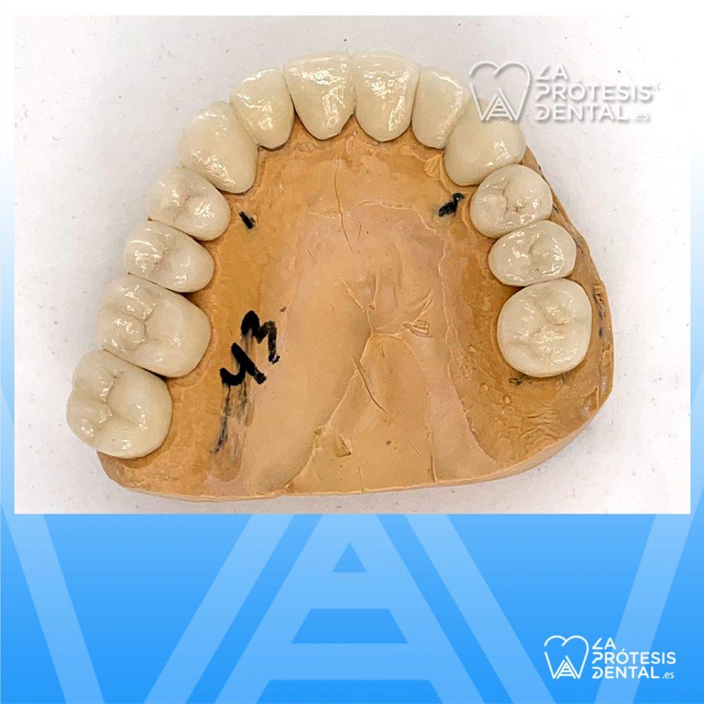 la-protesis-dental-0906