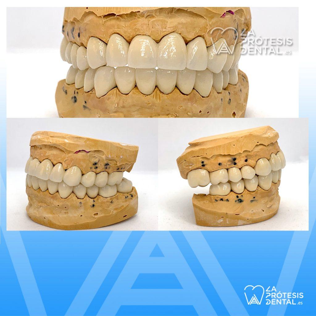 la-protesis-dental-montaje-1